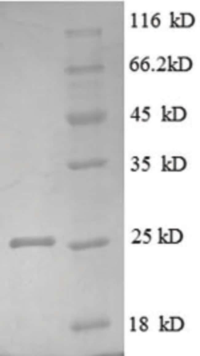enQuireBio™Recombinant Human LTBR / TNFRSF3 Protein 1mg enQuireBio™Recombinant Human LTBR / TNFRSF3 Protein