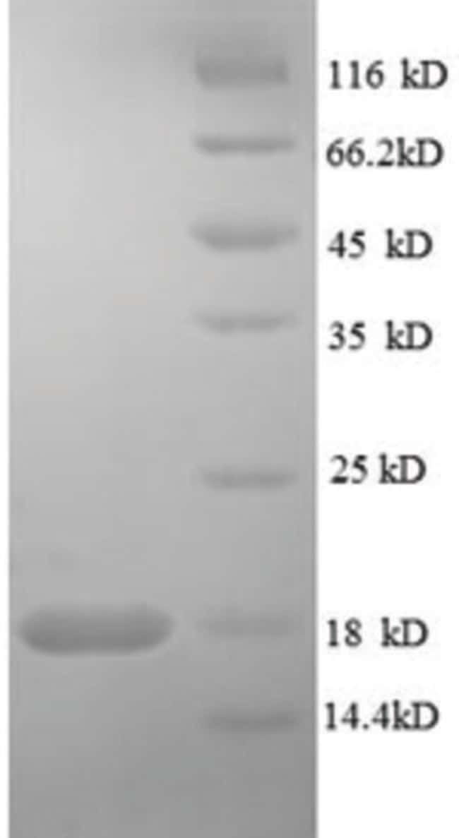 enQuireBio™Recombinant Human RELT / TNFRSF19L Protein 10μg enQuireBio™Recombinant Human RELT / TNFRSF19L Protein
