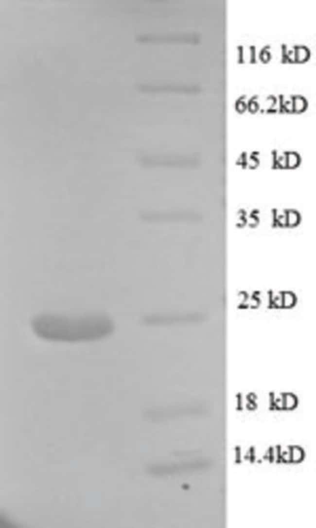 enQuireBio™Recombinant Human Major capsid protein L1 Protein 200μg enQuireBio™Recombinant Human Major capsid protein L1 Protein