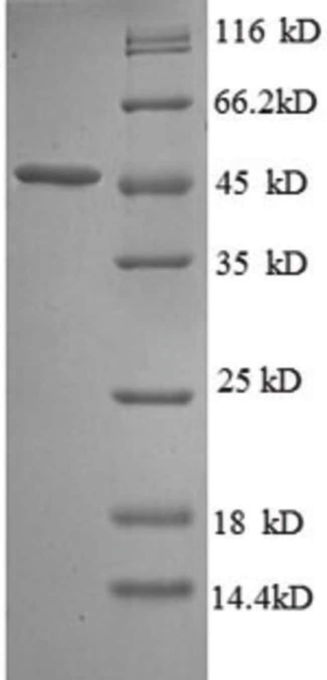 enQuireBio™Recombinant E. coli Probable diguanylate cyclase YedQ Protein 1mg enQuireBio™Recombinant E. coli Probable diguanylate cyclase YedQ Protein