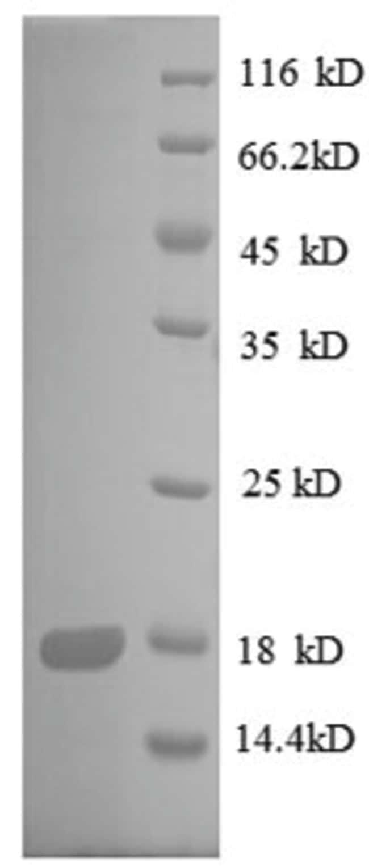 enQuireBio™Recombinant E. coli 30S ribosomal protein S8 Protein 10μg enQuireBio™Recombinant E. coli 30S ribosomal protein S8 Protein