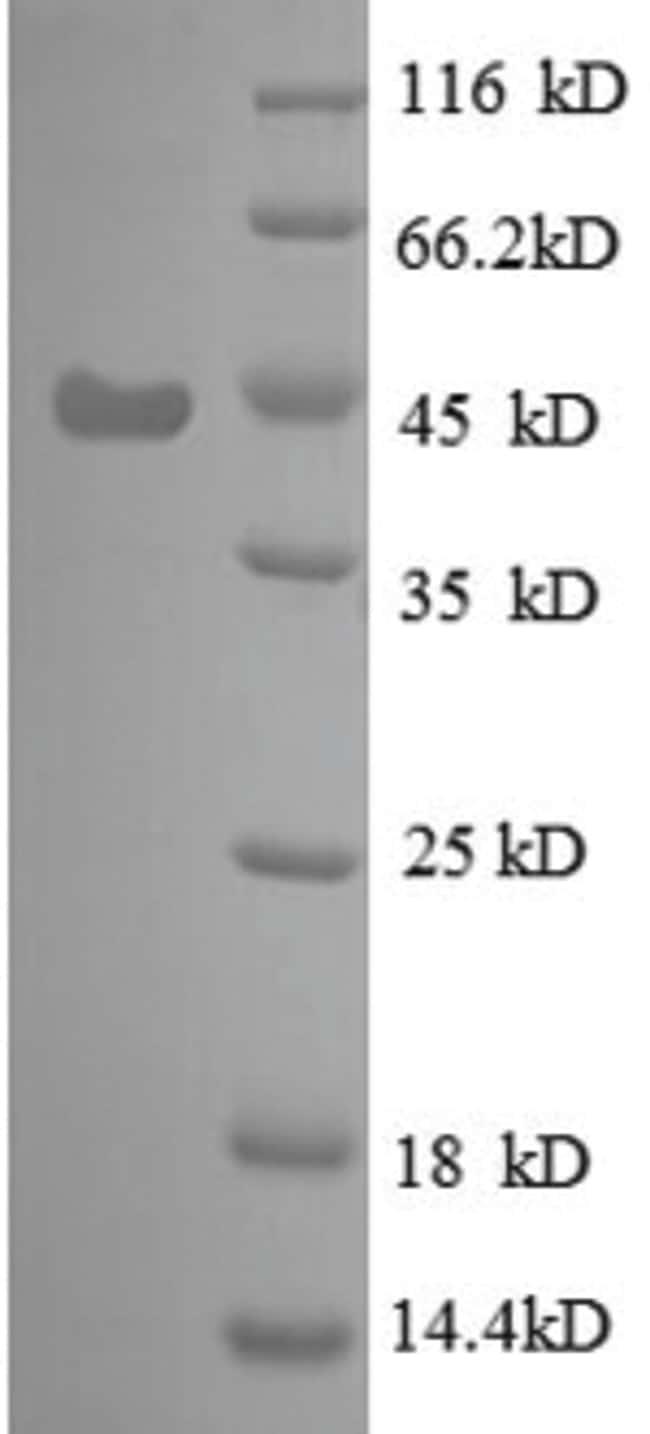 enQuireBio™Recombinant E. coli 30S ribosomal protein S6 Protein 200μg enQuireBio™Recombinant E. coli 30S ribosomal protein S6 Protein