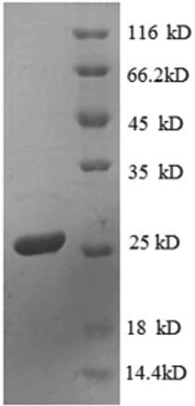 enQuireBio™Recombinant E. coli 30S ribosomal protein S4 Protein 1mg enQuireBio™Recombinant E. coli 30S ribosomal protein S4 Protein