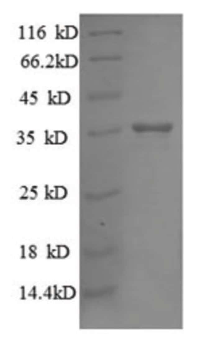 enQuireBio™Recombinant E. coli 30S ribosomal protein S18 Protein 200μg enQuireBio™Recombinant E. coli 30S ribosomal protein S18 Protein