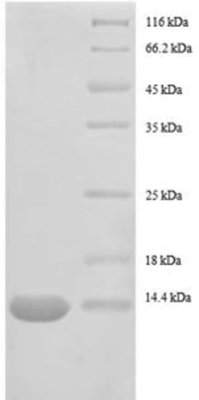 enQuireBio™Recombinant E. coli 30S ribosomal protein S15 Protein 10μg enQuireBio™Recombinant E. coli 30S ribosomal protein S15 Protein