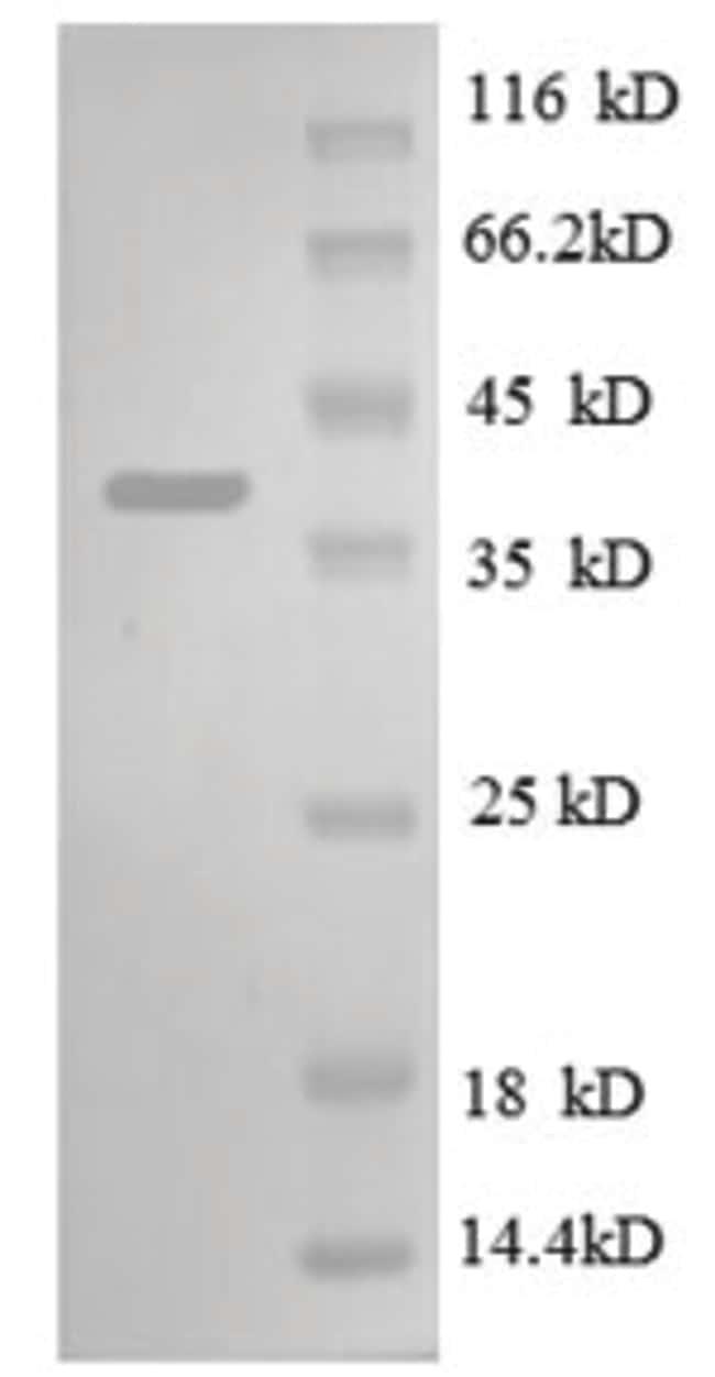 enQuireBio™Recombinant E. coli 30S ribosomal protein S13 Protein 50μg enQuireBio™Recombinant E. coli 30S ribosomal protein S13 Protein
