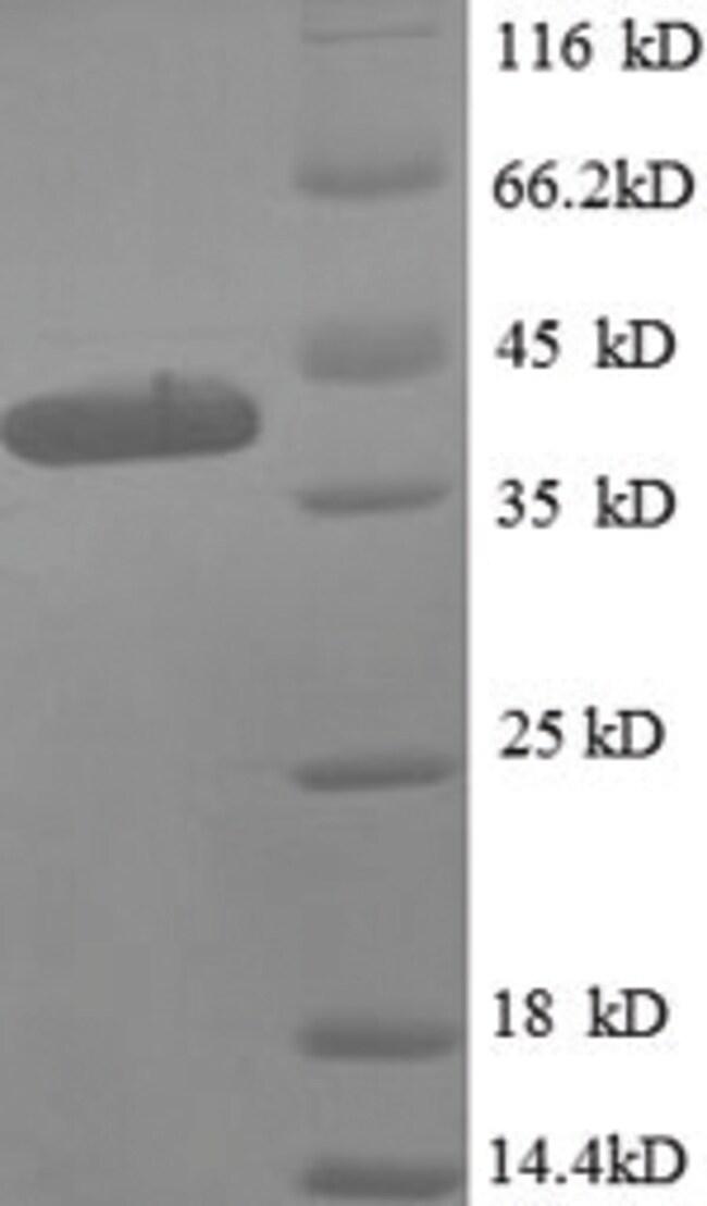 enQuireBio™Recombinant E. coli 50S ribosomal protein L9 Protein: Proteínas A-Z Proteínas