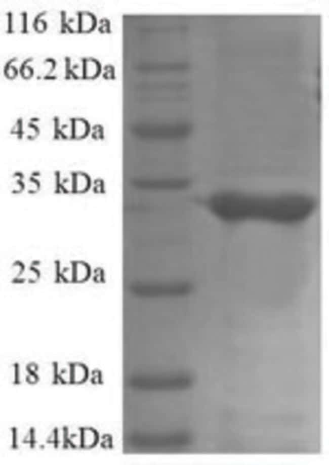 enQuireBio™Recombinant E. coli 50S ribosomal protein L34 Protein 200μg enQuireBio™Recombinant E. coli 50S ribosomal protein L34 Protein