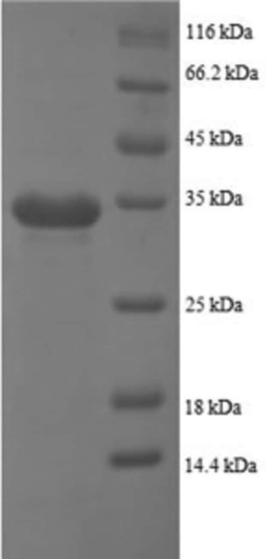 enQuireBio™Recombinant Human NAP-2 / PPBP / CXCL7 Protein 200μg enQuireBio™Recombinant Human NAP-2 / PPBP / CXCL7 Protein