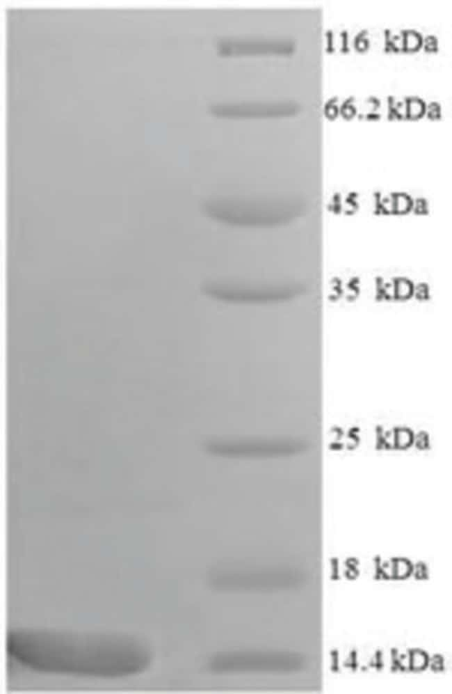 enQuireBio™Recombinant Mouse C-C motif chemokine 9 Protein 200μg enQuireBio™Recombinant Mouse C-C motif chemokine 9 Protein