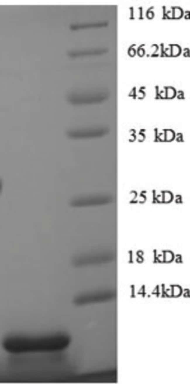 enQuireBio™Recombinant Mouse CXCL5 / ENA-78 Protein 10μg enQuireBio™Recombinant Mouse CXCL5 / ENA-78 Protein