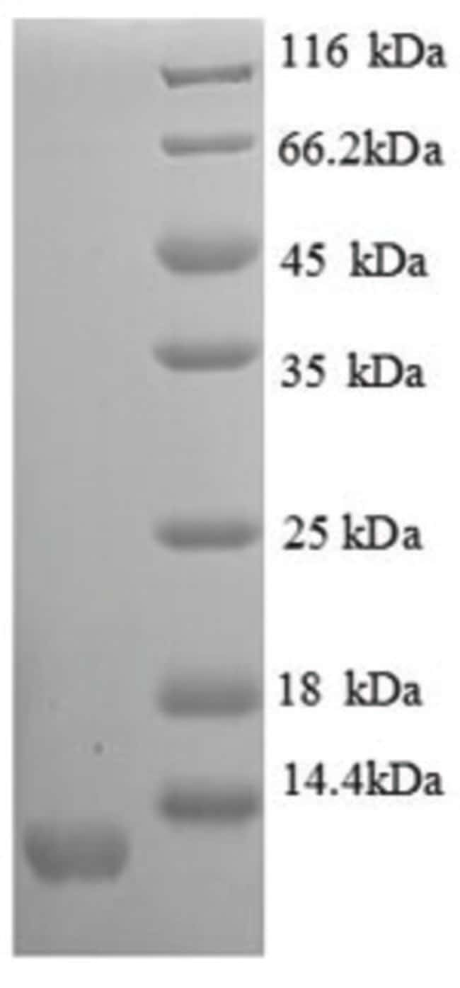 enQuireBio™Recombinant Mouse I-TAC / CXCL11 Protein 1mg enQuireBio™Recombinant Mouse I-TAC / CXCL11 Protein