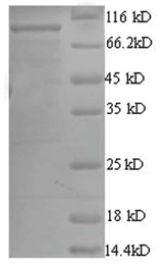 enQuireBio™Recombinant E. coli ATP-dependent DNA helicase Rep Protein 500μg enQuireBio™Recombinant E. coli ATP-dependent DNA helicase Rep Protein
