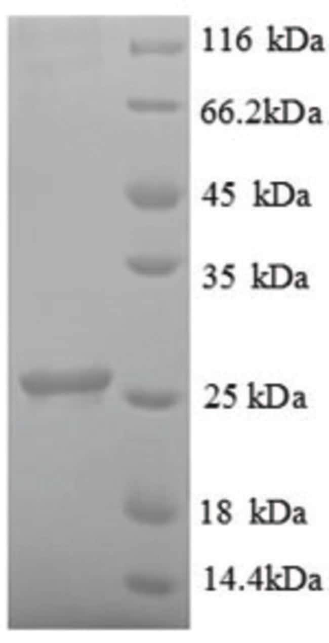 enQuireBio™Recombinant Human Ubiquitin-conjugating enzyme E2 K Protein 1mg enQuireBio™Recombinant Human Ubiquitin-conjugating enzyme E2 K Protein