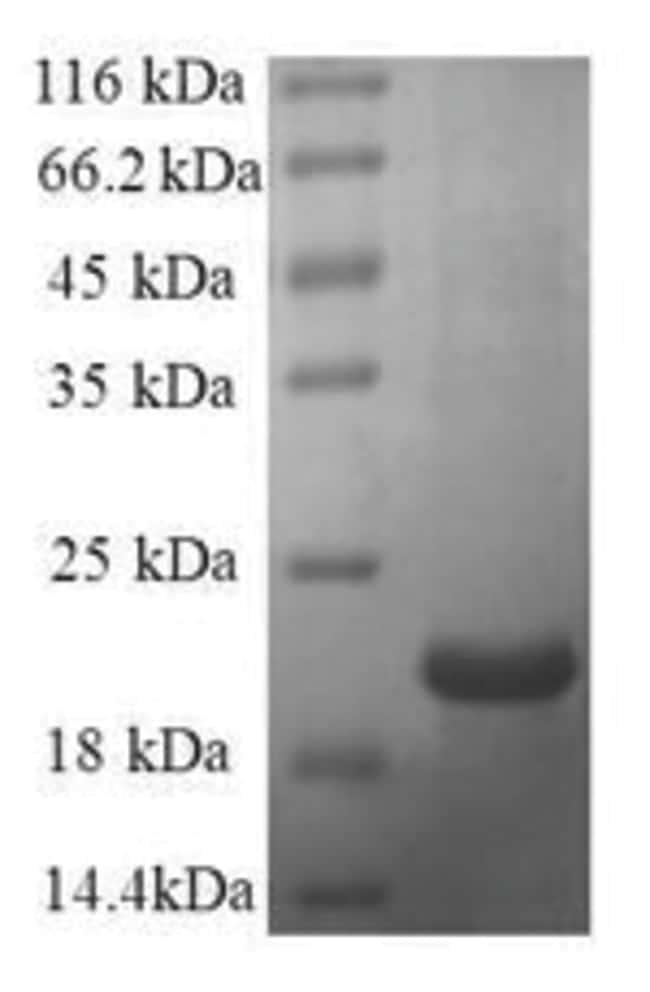 enQuireBio™Recombinant Human Galectin-7 / LGALS7 Protein 500μg enQuireBio™Recombinant Human Galectin-7 / LGALS7 Protein