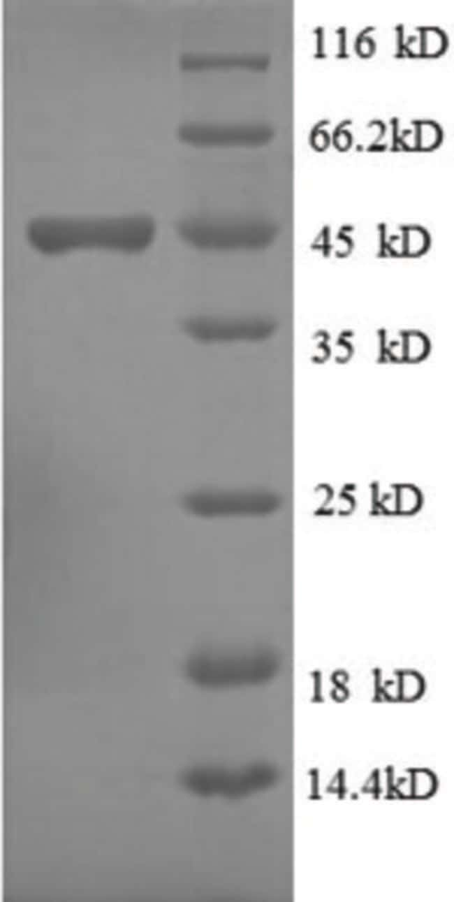 enQuireBio™Recombinant Human Ubiquitin-like protein ISG15 Protein 1mg enQuireBio™Recombinant Human Ubiquitin-like protein ISG15 Protein