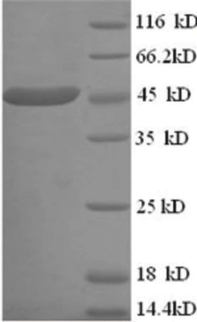 enQuireBio™ Recombinant Human CKMT1A Protein 50μg enQuireBio™ Recombinant Human CKMT1A Protein