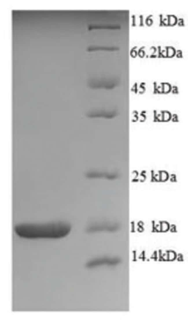 enQuireBio™ Recombinant Human NTF4 Protein 200μg enQuireBio™ Recombinant Human NTF4 Protein