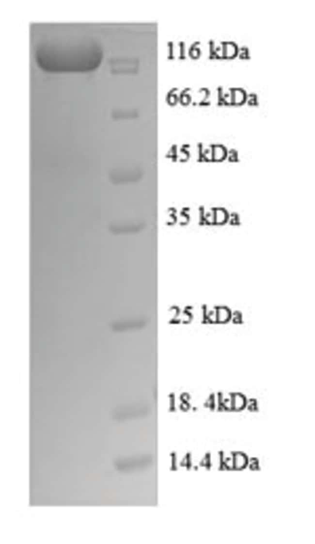 enQuireBio™Recombinant Human Nuclear factor NF-kappa-B p105 subunit Protein 10μg enQuireBio™Recombinant Human Nuclear factor NF-kappa-B p105 subunit Protein