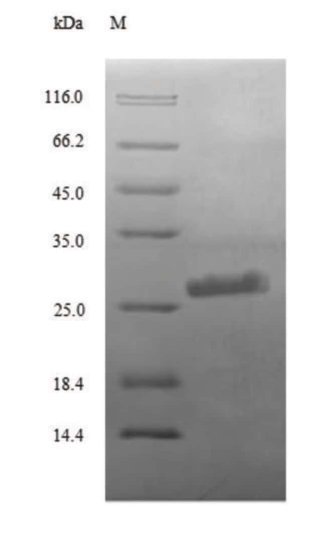 enQuireBio™ Recombinant Human Complement C3 Protein 50μg enQuireBio™ Recombinant Human Complement C3 Protein