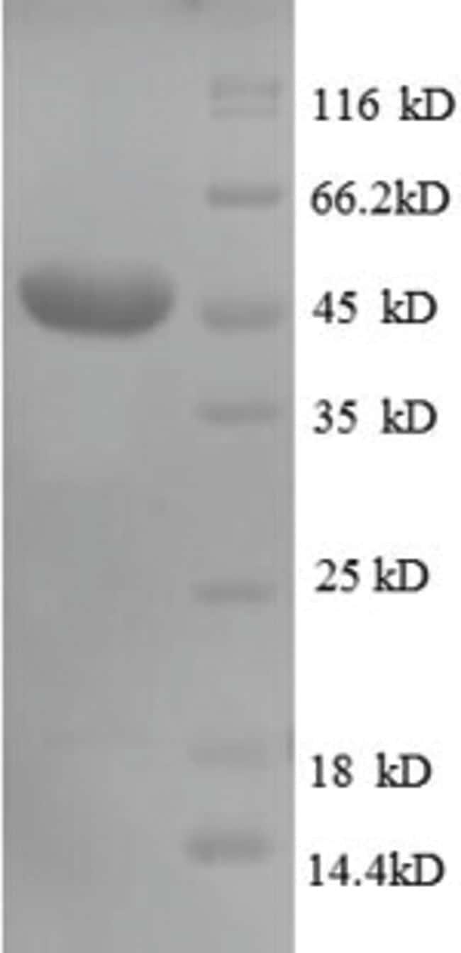 enQuireBio™Recombinant Human CD320 Protein 100μg enQuireBio™Recombinant Human CD320 Protein
