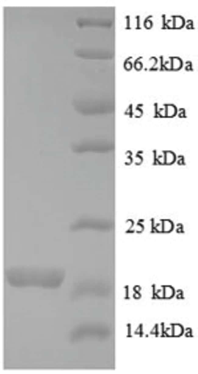 enQuireBio™Recombinant Human Bone morphogenetic protein 1: Proteínas A-Z Proteínas