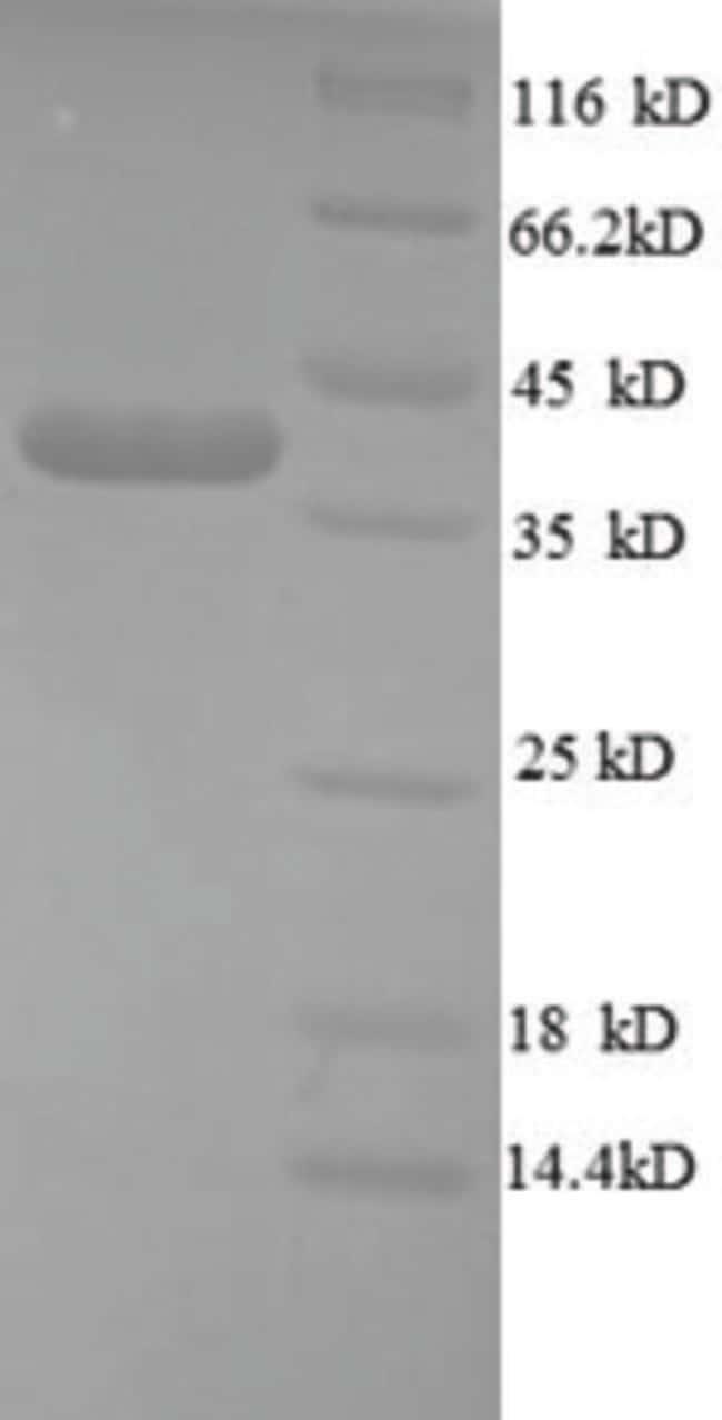 enQuireBio™Recombinant Human Cripto / TDGF1 Protein 200μg enQuireBio™Recombinant Human Cripto / TDGF1 Protein