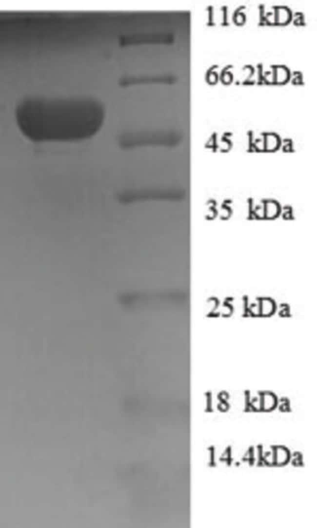 enQuireBio™Recombinant Human HAGH / GLO2 / Glyoxalase II Protein 500μg enQuireBio™Recombinant Human HAGH / GLO2 / Glyoxalase II Protein