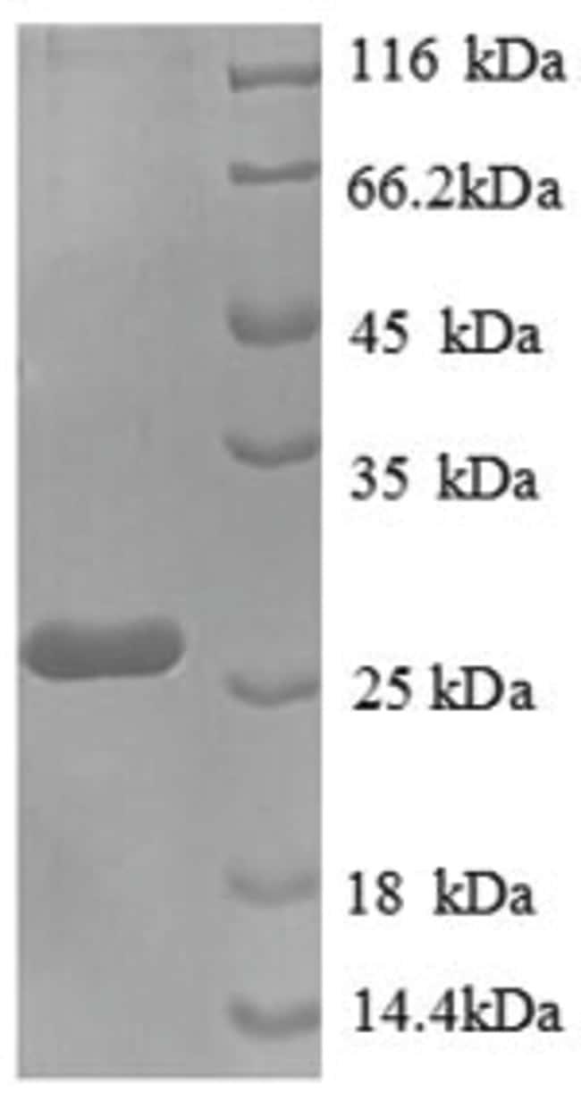 enQuireBio™Recombinant Human Placental Lactogen / CSH1 Protein 50μg enQuireBio™Recombinant Human Placental Lactogen / CSH1 Protein