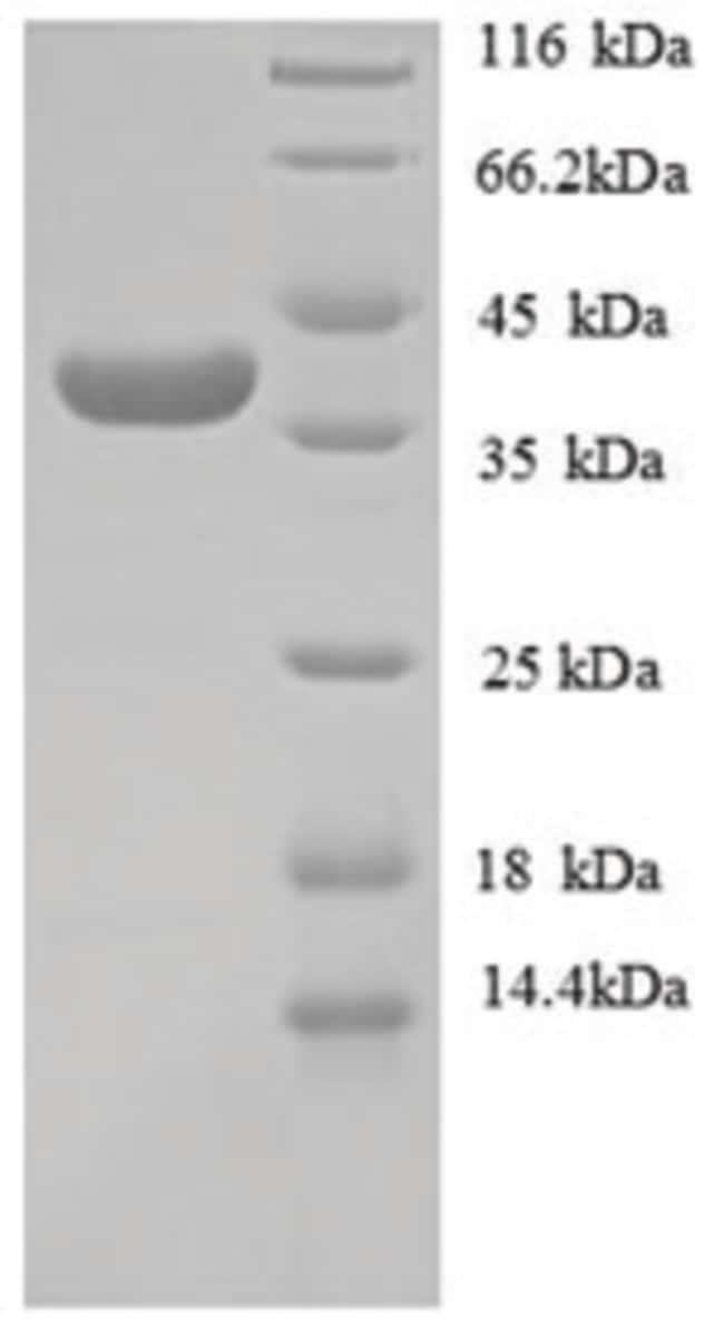 enQuireBio™Recombinant Human Collagen alpha-1(IV) chain Protein 200μg enQuireBio™Recombinant Human Collagen alpha-1(IV) chain Protein