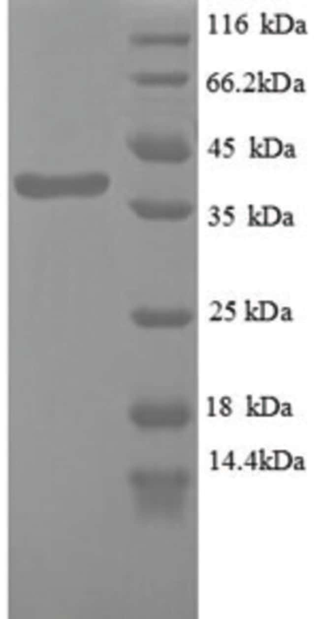 enQuireBio™Recombinant Human Wilm's Tumor 1 Protein 500μg enQuireBio™Recombinant Human Wilm's Tumor 1 Protein