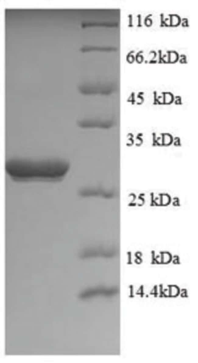 enQuireBio™Recombinant Human UCHL1 / PGP9.5 Protein 200μg enQuireBio™Recombinant Human UCHL1 / PGP9.5 Protein