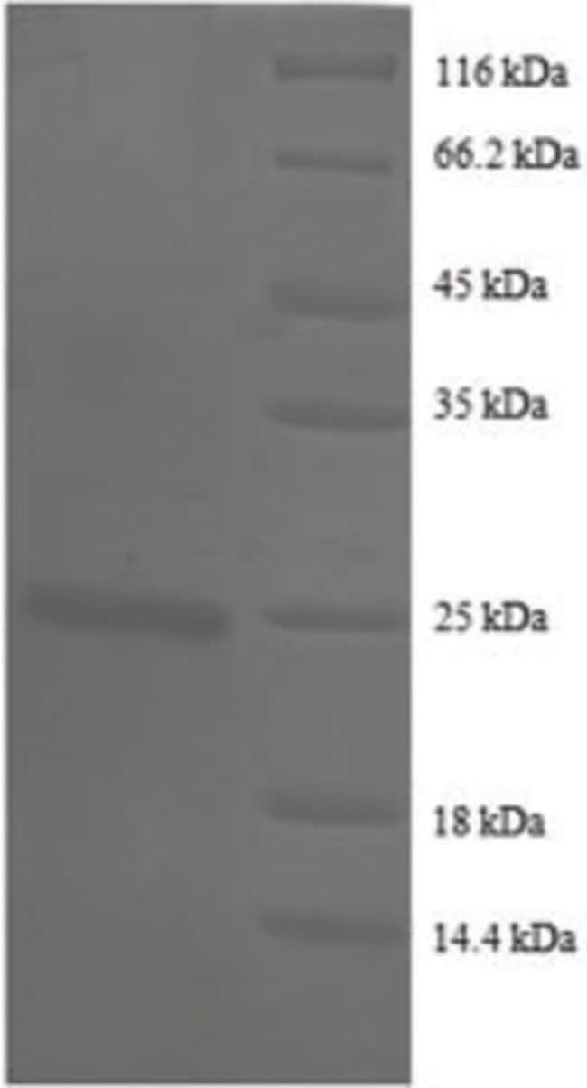 enQuireBio™Recombinant Human CD147 / EMMPRIN / Basigin Protein 10μg enQuireBio™Recombinant Human CD147 / EMMPRIN / Basigin Protein