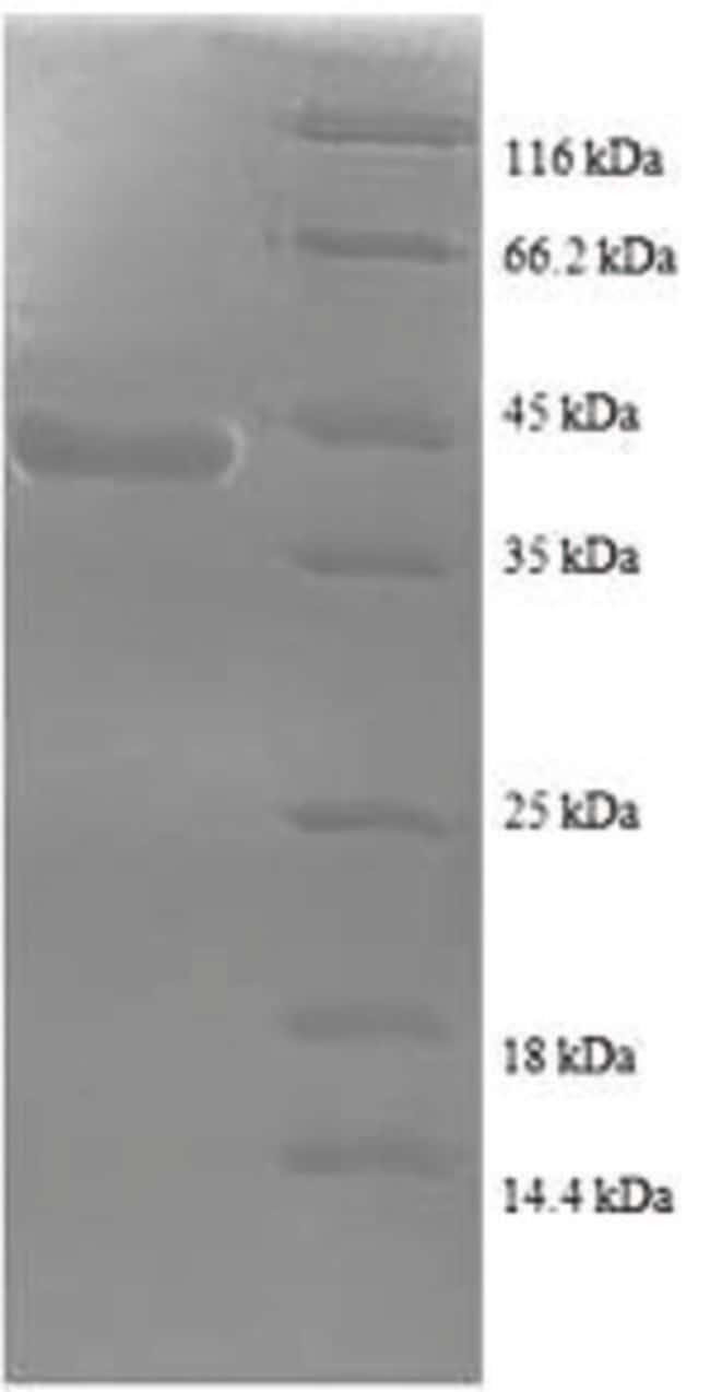 enQuireBio™ Recombinant Human Sperm surface protein Sp17 Protein 10μg enQuireBio™ Recombinant Human Sperm surface protein Sp17 Protein
