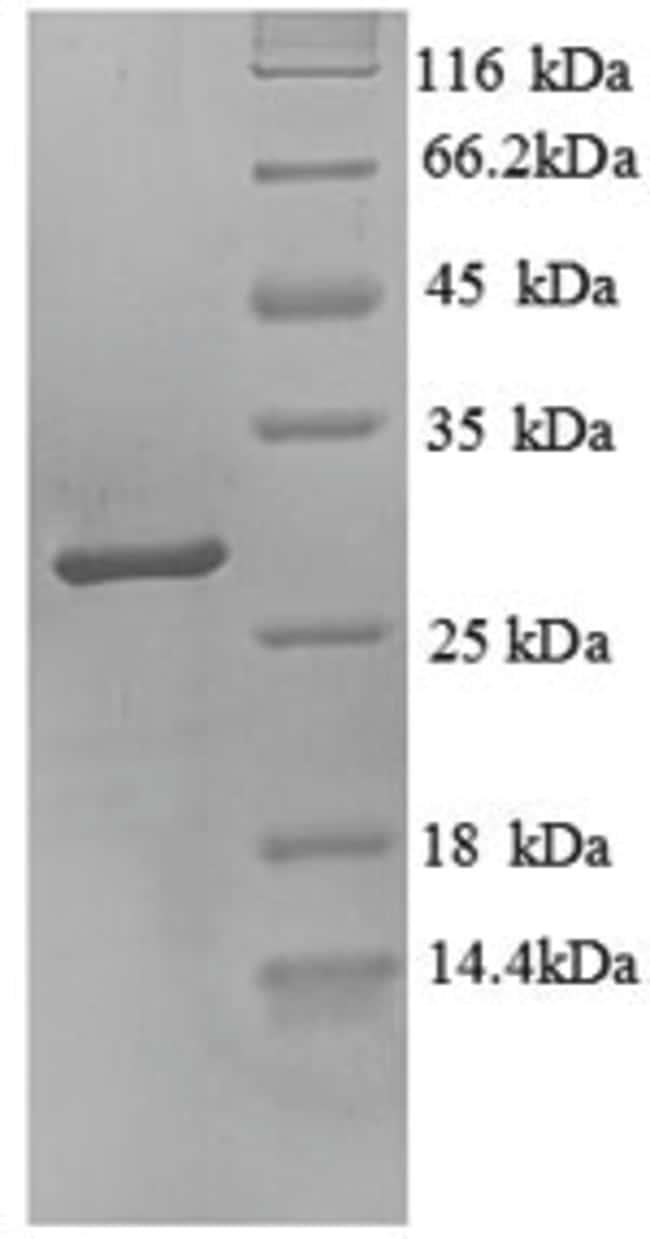 enQuireBio™Recombinant Human Trypsin-3 / PRSS3 Protein 200μg enQuireBio™Recombinant Human Trypsin-3 / PRSS3 Protein