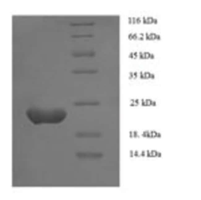 enQuireBio™Recombinant Human Zinc finger protein GLI1 Protein 1mg enQuireBio™Recombinant Human Zinc finger protein GLI1 Protein