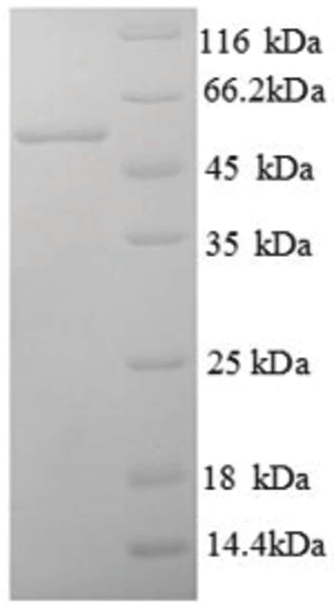 enQuireBio™Recombinant Human B7-H4 / B7S1 / B7x Protein 10μg enQuireBio™Recombinant Human B7-H4 / B7S1 / B7x Protein