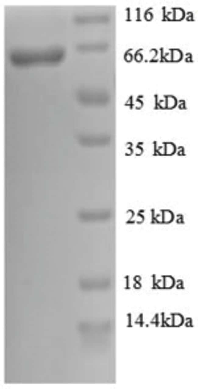 enQuireBio™Recombinant Human Cadherin-12 Protein 200μg enQuireBio™Recombinant Human Cadherin-12 Protein