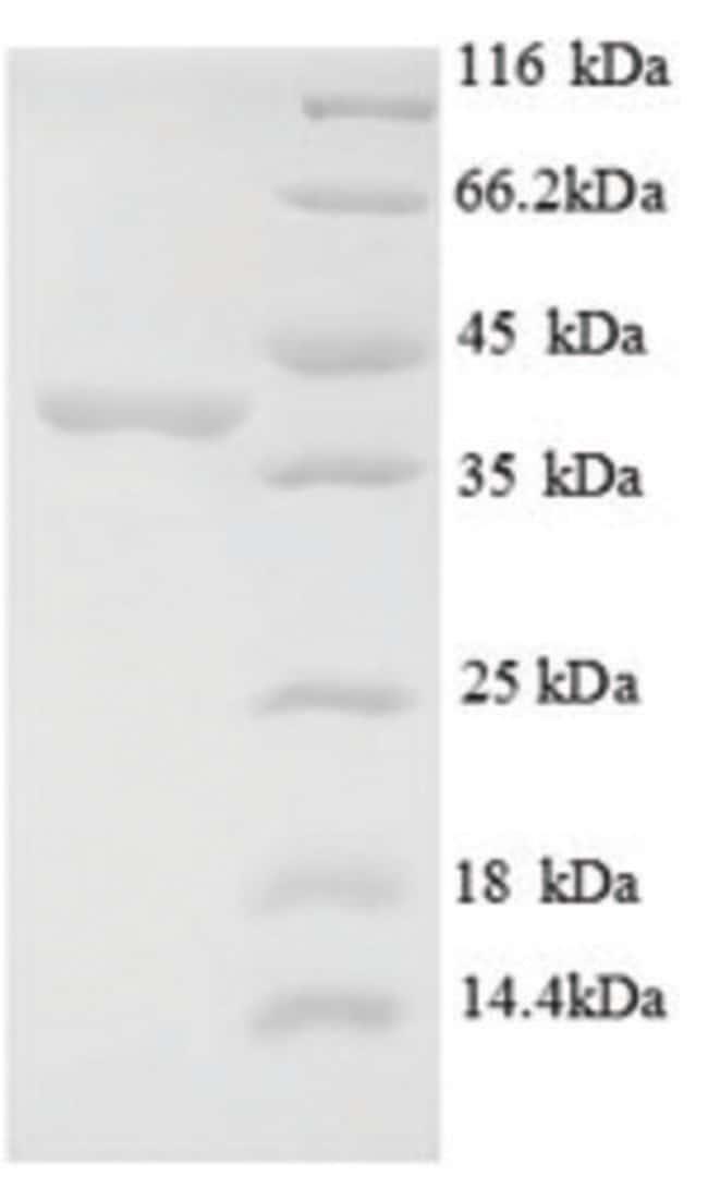 enQuireBio™Recombinant Human E3 ubiquitin-protein ligase MIB1 Protein 500μg enQuireBio™Recombinant Human E3 ubiquitin-protein ligase MIB1 Protein