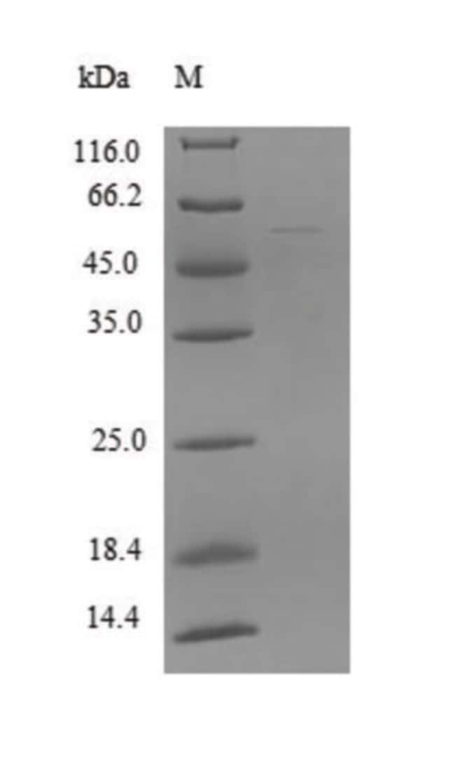 enQuireBio™ Recombinant Human ZSCAN21 Protein 10μg enQuireBio™ Recombinant Human ZSCAN21 Protein