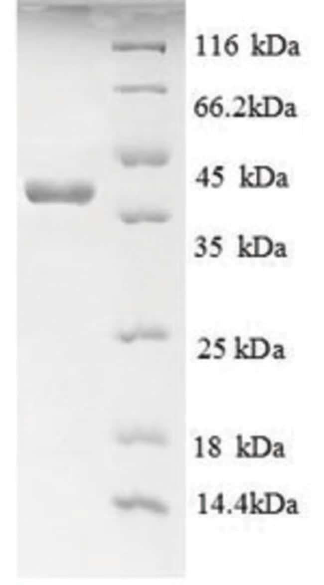 enQuireBio™Recombinant Human AGER / RAGE Protein 500μg enQuireBio™Recombinant Human AGER / RAGE Protein