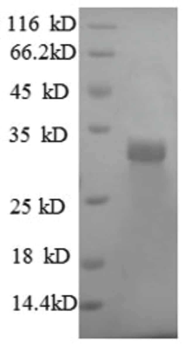 enQuireBio™Recombinant Human Laminin subunit beta-2 Protein 1mg enQuireBio™Recombinant Human Laminin subunit beta-2 Protein