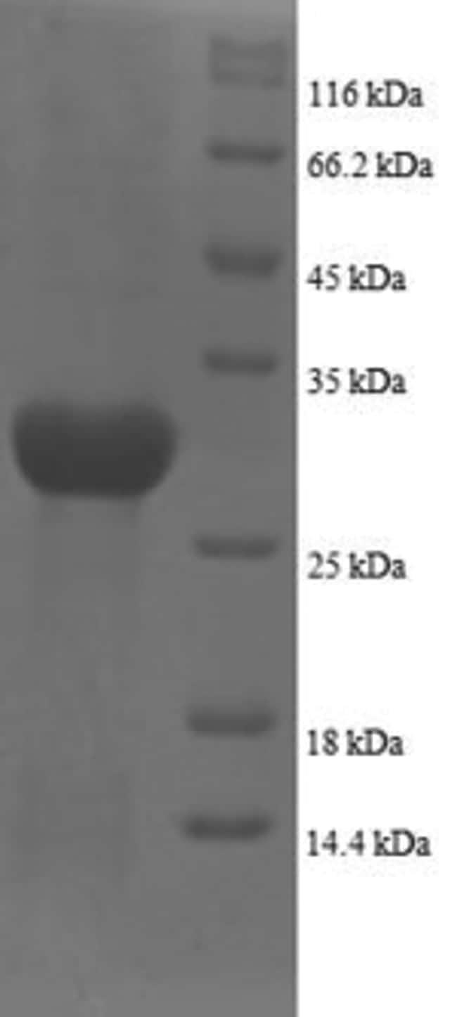 enQuireBio™Recombinant Human Plexin-A1 Protein 50μg enQuireBio™Recombinant Human Plexin-A1 Protein