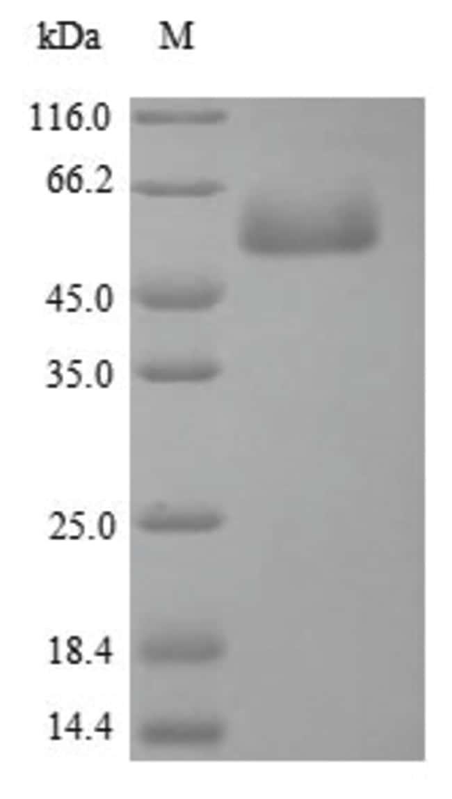 enQuireBio™Recombinant Chicken Focal adhesion kinase 1 Protein 10μg enQuireBio™Recombinant Chicken Focal adhesion kinase 1 Protein