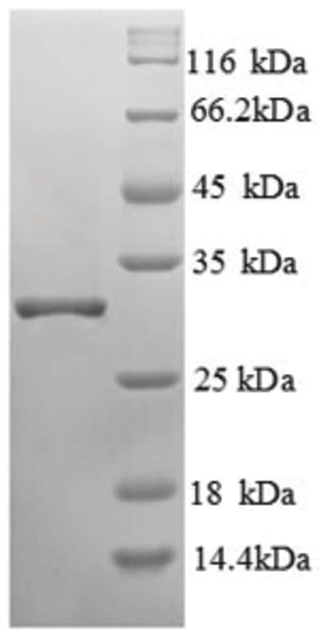 enQuireBio™Recombinant Human ENPEP / Aminopeptidase A Protein 1mg enQuireBio™Recombinant Human ENPEP / Aminopeptidase A Protein