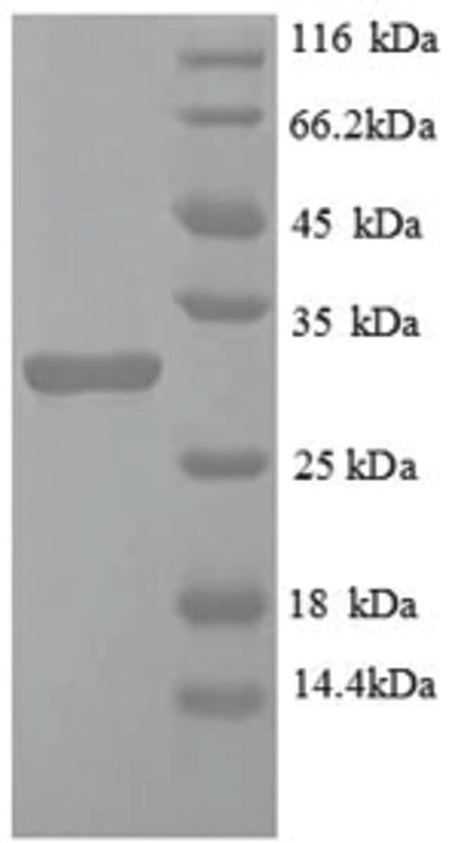 enQuireBio™Recombinant Mouse Egl nine homolog 3 Protein 10μg enQuireBio™Recombinant Mouse Egl nine homolog 3 Protein