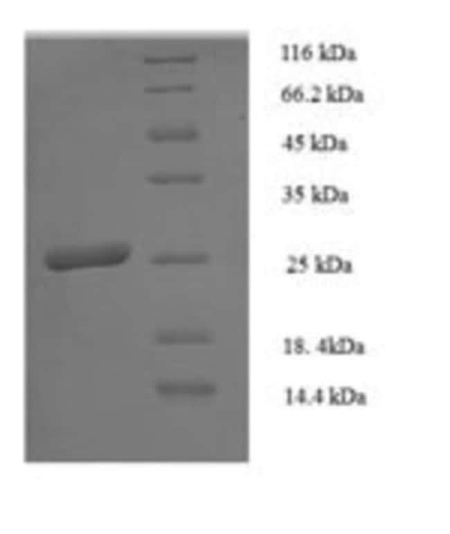 enQuireBio™Recombinant Human HLA-DPB1 Protein 100μg enQuireBio™Recombinant Human HLA-DPB1 Protein