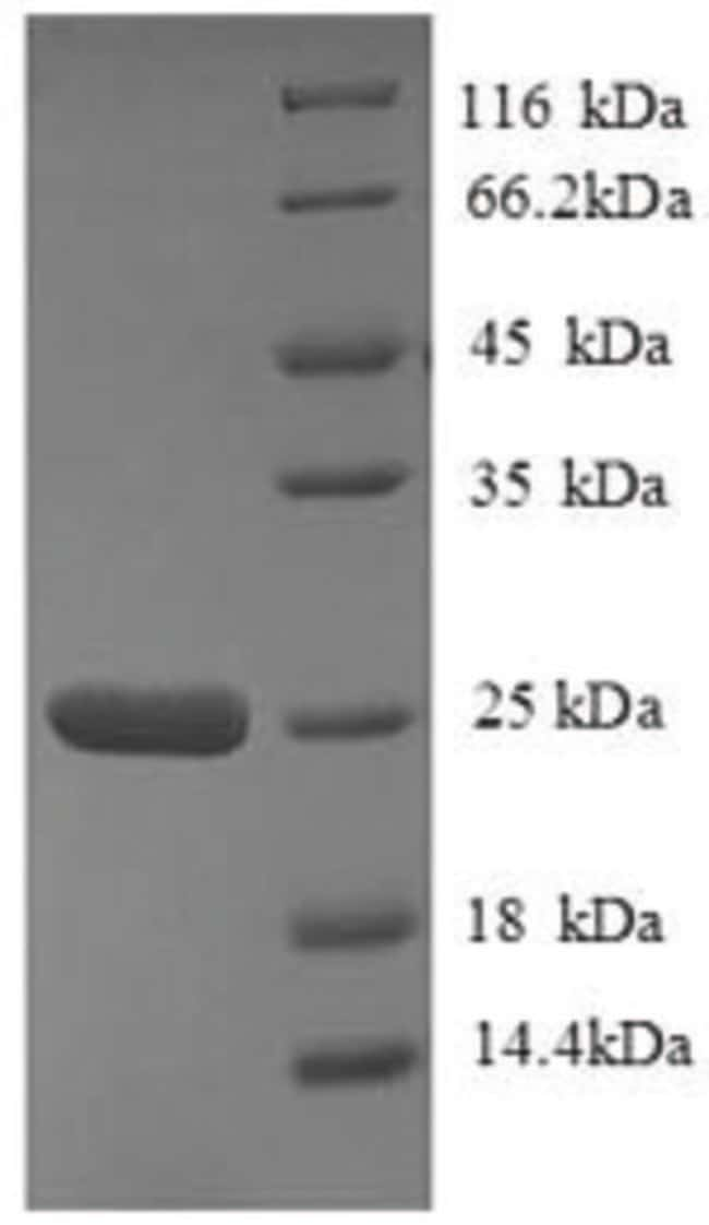enQuireBio™Recombinant Human HLA-DQA2 Protein 200μg enQuireBio™Recombinant Human HLA-DQA2 Protein