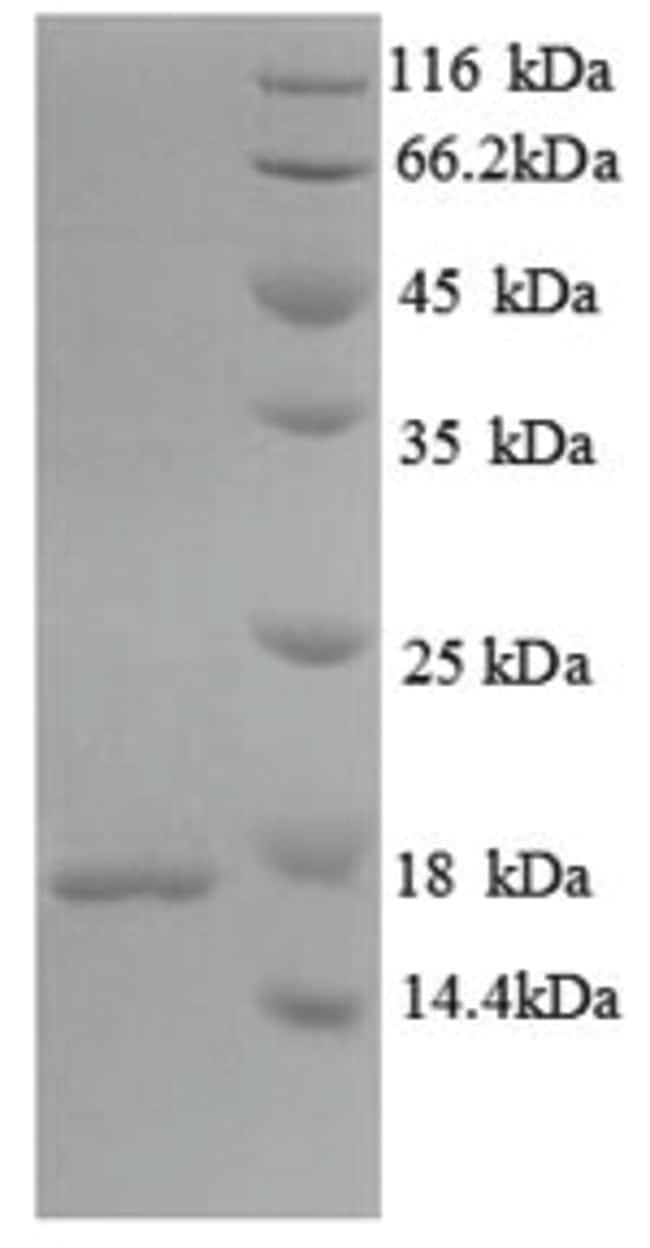 enQuireBio™Recombinant M. tuberculosis Immunogenic protein MPT63 Protein 100μg enQuireBio™Recombinant M. tuberculosis Immunogenic protein MPT63 Protein