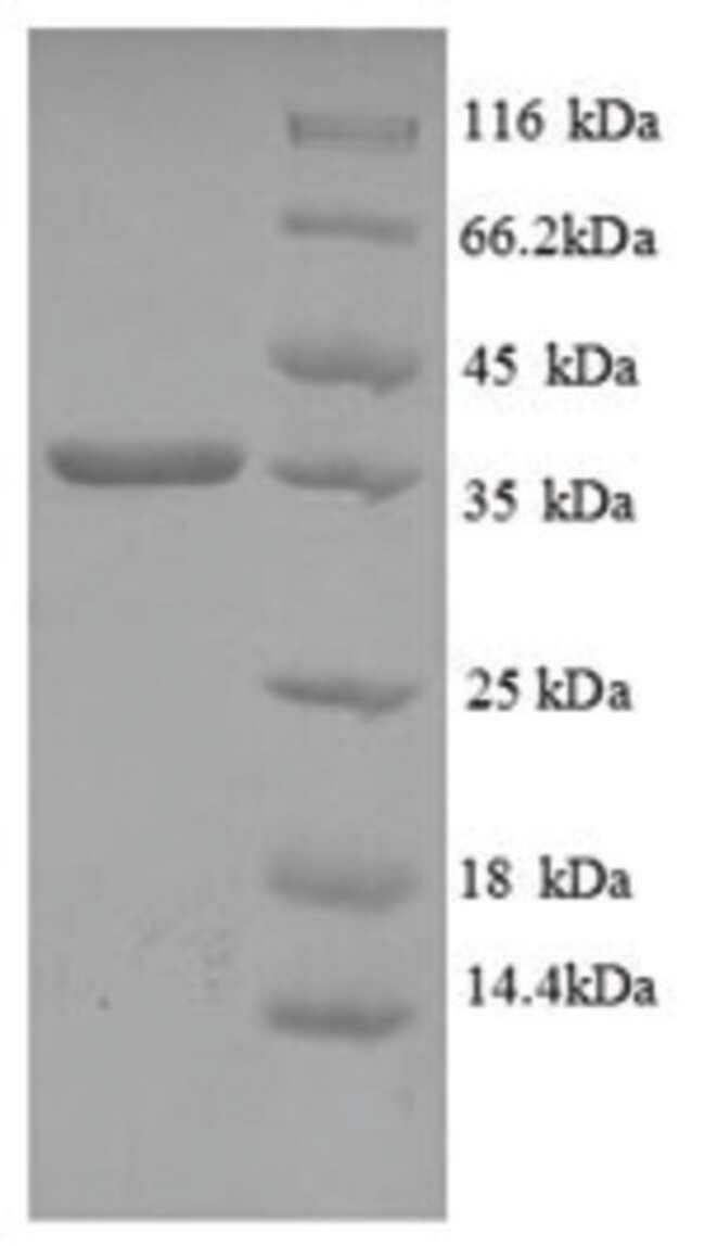 enQuireBio™Recombinant Human HLA-C Protein 10μg enQuireBio™Recombinant Human HLA-C Protein